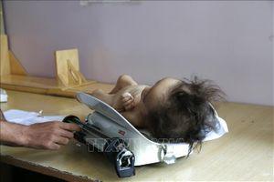 UNICEF kêu gọi giải quyết tình trạng trẻ em suy dinh dưỡng