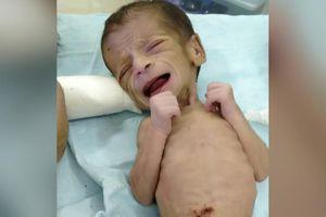 Giải cứu bé gái 4 ngày tuổi bị chôn sống tại Ấn Độ