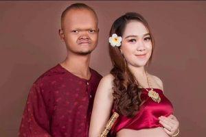 Cặp đũa lệch nổi tiếng Campuchia sinh con trai đầu lòng