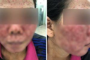 Hỏng cả khuôn mặt sau khi lột da bằng hóa chất