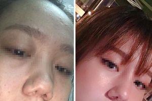 Vụ khách hàng tố Klain Beauty Center làm hỏng mũi: Công ty TNHH Klain bị phạt vì dính nhiều vi phạm