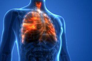 Mỹ đặt tên cho căn bệnh viêm phổi do thuốc lá điện tử gây ra