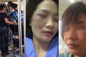 Nhắc nhở hành khách, nữ nhân viên xe buýt bị 4 thanh niên hành hung đúng ngày 20/10