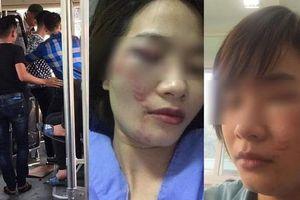 Xử lý như nào nhóm côn đồ đánh nữ nhân viên xe buýt nhập viện?