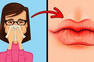Dấu hiệu trên đôi môi nói lên vấn đề sức khỏe của bạn