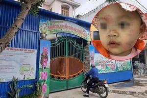 Bé gái 14 tháng tuổi bị nhiều vết bầm tím trên mặt ngay ngày đầu đến lớp