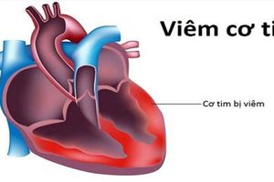 Không có bệnh truyền nhiễm mang tên 'viêm cơ tim do vi rút'