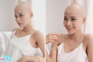 Phát hiện bị ung thư dù mới ở tuổi 20, cô sinh viên đại học vẫn lạc quan khoe nhan sắc rạng ngời
