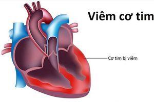 Không tồn tại virus lạ gây viêm cơ tim