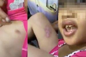Bé gái 6 tuổi kể bị cha dượng đánh đập dã man, châm thuốc lá vào người ở Sài Gòn