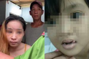 Những vết sẹo ám ảnh của bé gái 6 tuổi nghi bị 'chồng hờ' của mẹ đánh đập dã man, gí tàn thuốc vào người