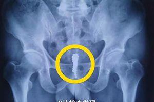 Trung Quốc: Người đàn ông nhét 28 viên bi nam châm vào niệu đạo
