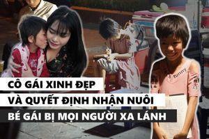 Cô gái Hà Nội bất chấp bị kỳ thị vẫn nhận nuôi bé gái lở loét khắp người và câu chuyện xót xa chạm đến trái tim
