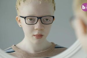 Nghị lực của cô gái bạch tạng với ước mơ trở thành người mẫu