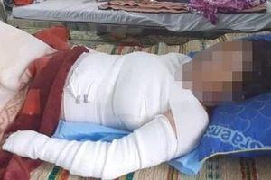 Giận chồng, thai phụ 37 tuần đổ xăng lên người rồi châm lửa