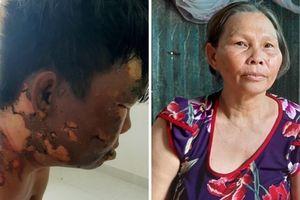 Nguyên nhân em trai bị chị tưới nước sôi vào đầu: Do hỗn láo?