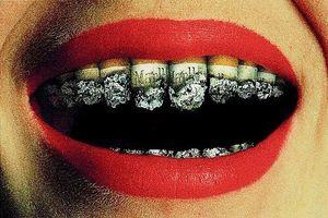 Hút thuốc lá và các bệnh về răng miệng do thuốc lá gây ra