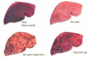 Dấu hiệu và cách phòng tránh ung thư gan