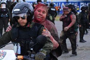 Thị trưởng Bolivia bị người biểu tình cắt tóc, kéo lê trên phố