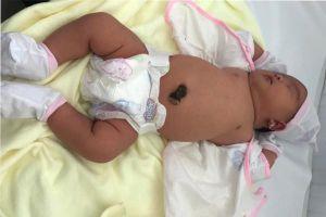 Bé gái 5,2 kg chào đời khỏe mạnh