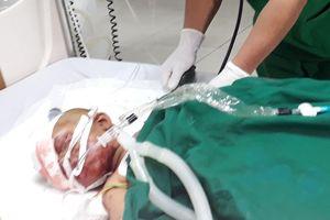 Kê đạn pháo cũ làm kiềng bếp, nổ kinh hoàng khiến 9 người bị thương ở Kon Tum