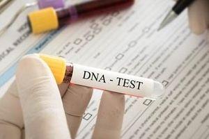 ADN và bi kịch nghiệt ngã