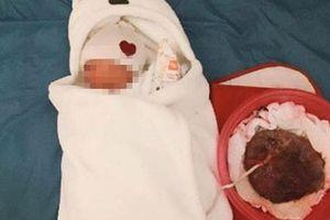 Sản phụ TP HCM tự sinh tại nhà, con tử vong: Cái chết báo trước, sao người mẹ làm thế?