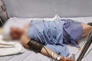 Hà Nội: Nam thanh niên dùng dao chém chủ nhà nghỉ liên tiếp trong đêm
