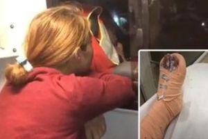 Cô gái 21 tuổi bị bạn trai giam lỏng, tra tấn như thời Trung Cổ