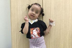 Cứu sống em bé 4 tuổi mang khối u nửa lành nửa ác