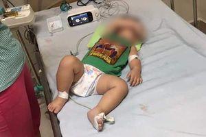 Ngành Y tế Hà Nội lên tiếng về vụ 3 chị em ruột tử vong vì nghi mắc Whitmore