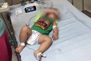 Hà Nội: 3 trẻ trong một gia đình tử vong nghi vì bệnh Whitmore