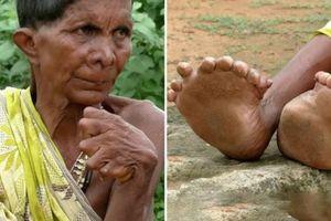 Người phụ nữ 63 năm sống với 19 ngón chân, 12 ngón tay