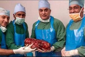 Ấn Độ: Phẫu thuật cắt bỏ quả thận khổng lồ nặng 7,4kg của bệnh nhân