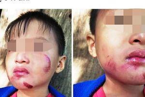 Một cháu bé 6 tuổi nghi bị chính mẹ ruột đánh dã man