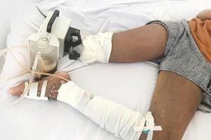 Bỏ bệnh viện về tìm thầy lang nhờ trị rắn cắn, bé gái 13 tuổi phải cắt cụt chân