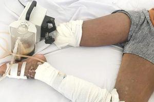 Điều trị rắn cắn bằng cách lễ, hút máu, bé gái 13 tuổi bị cắt chân