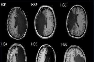 Bộ não hoạt động thế nào nếu mất đi một nửa