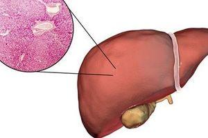 Ung thư gan có lây không?