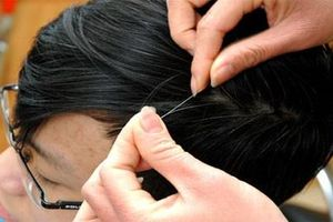 Có nên chi tiền mua thực phẩm chức năng trị bạc tóc không?