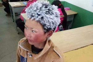 Gia đình 'cậu bé băng giá' bị từ chối xét hộ nghèo