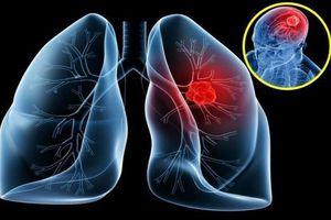 Mỗi năm hơn 20.000 người Việt tử vong vì ung thư phổi