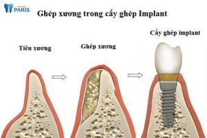 Trồng implant có phải ghép xương không?