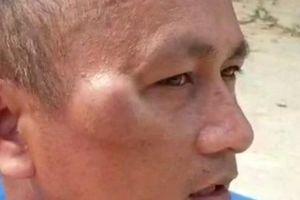 Quản lý khách sạn bị đánh hội đồng ở Phú Quốc làm đơn tố giác tội phạm