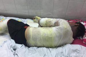 Lửa lan vào can xăng, hai vợ chồng bị bỏng nặng