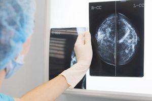 Ứng dụng AI tạo bước ngoặt trong chẩn đoán ung thư vú