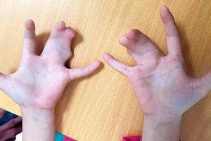 Phẫu thuật thành công bàn tay 'càng tôm hùm' cho bé 5 tuổi