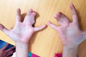 Tiền Giang: Dòng họ 4 đời bị dị tật bàn tay càng tôm hùm