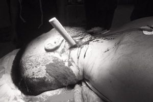 Cứu nam thanh niên 20 tuổi bị lưỡi dao 13 cm đâm lút cán vào cổ