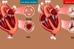 Hẹp hở van tim khó tránh khỏi biến chứng suy tim, loạn nhịp tim